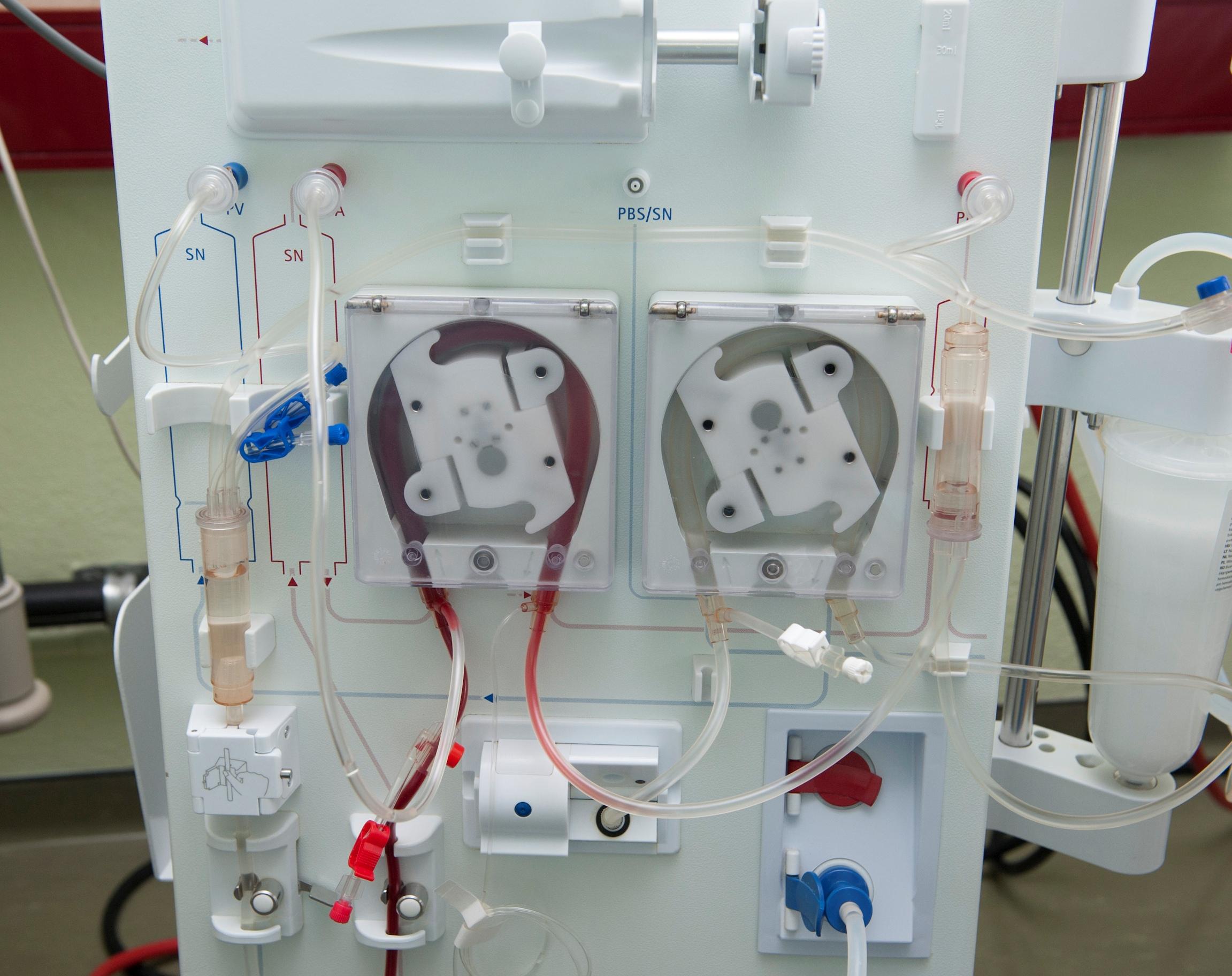 """Résultat de recherche d'images pour """"machines de dialyse"""""""