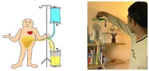 dialyse-peritoneale-manuelle